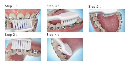 Braces Care Guidelines