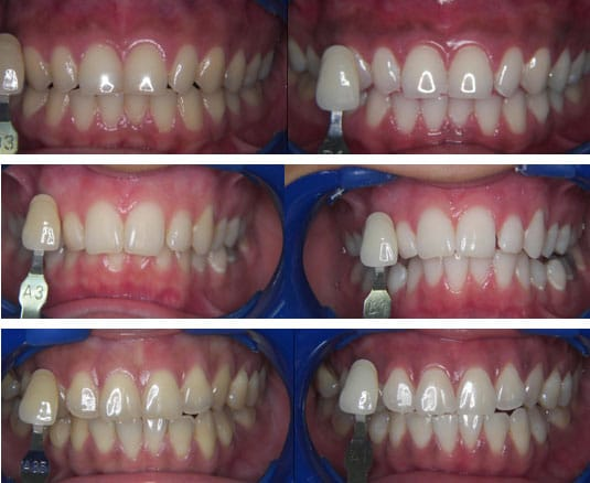 No matter how dull your teeth have become through all these years or how stained they are from tea, coffee, wine or cigarettes 1