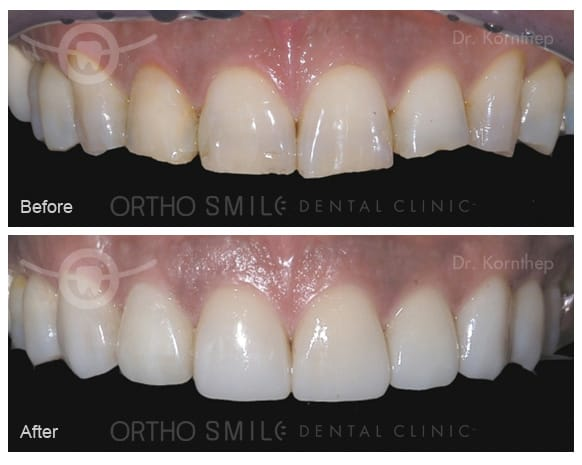 Empress Esthetic veneers done by Dr. Kornthep