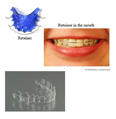 Retention is an essential part of your orthodontic treatment