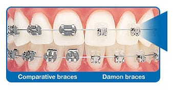 Revolutionary braces and wire