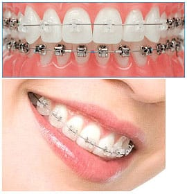 Dental braces also include the ceramic braces and these are more popular among teenagers