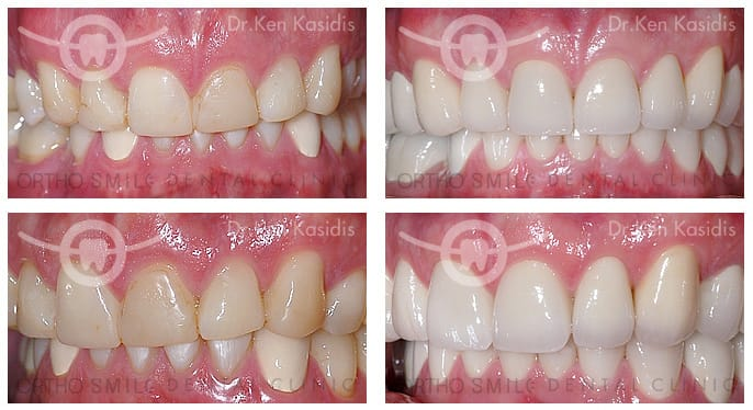 Full mouth rehabilitation with ceramic crowns 3