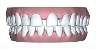 Widely spaced teeth